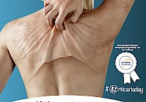 Urticaria Day, Athens Greece